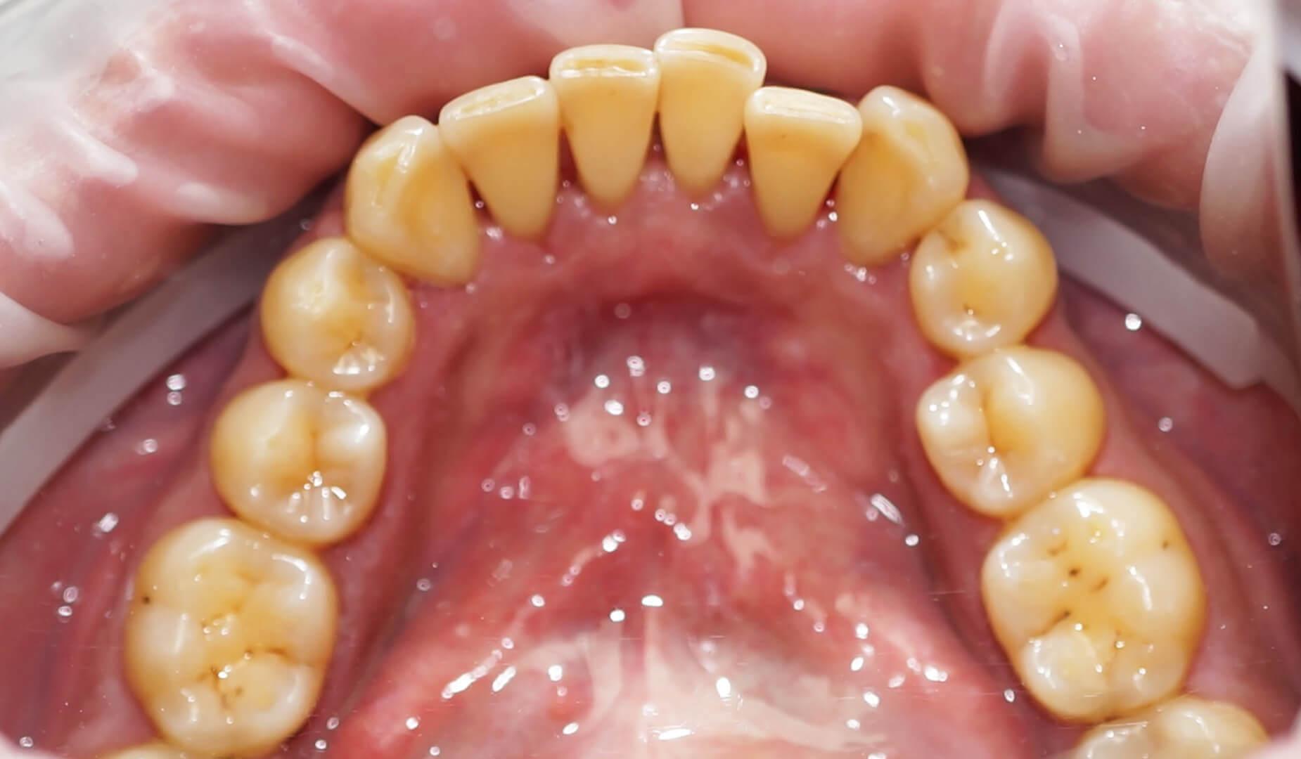 Зубы после удаленя налёта