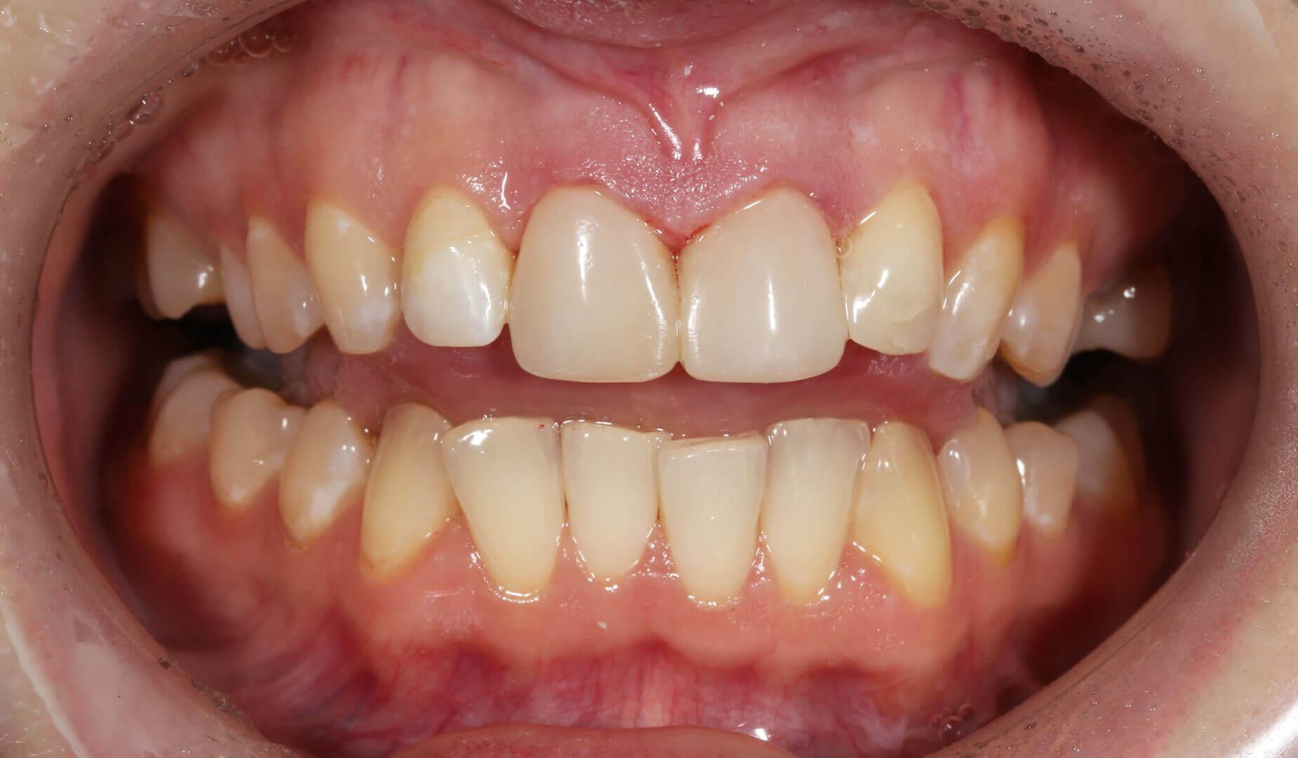 Восстановленные от сколов зубы