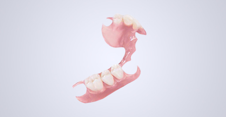 Как выглядит съемный зубной протез верхней челюсти