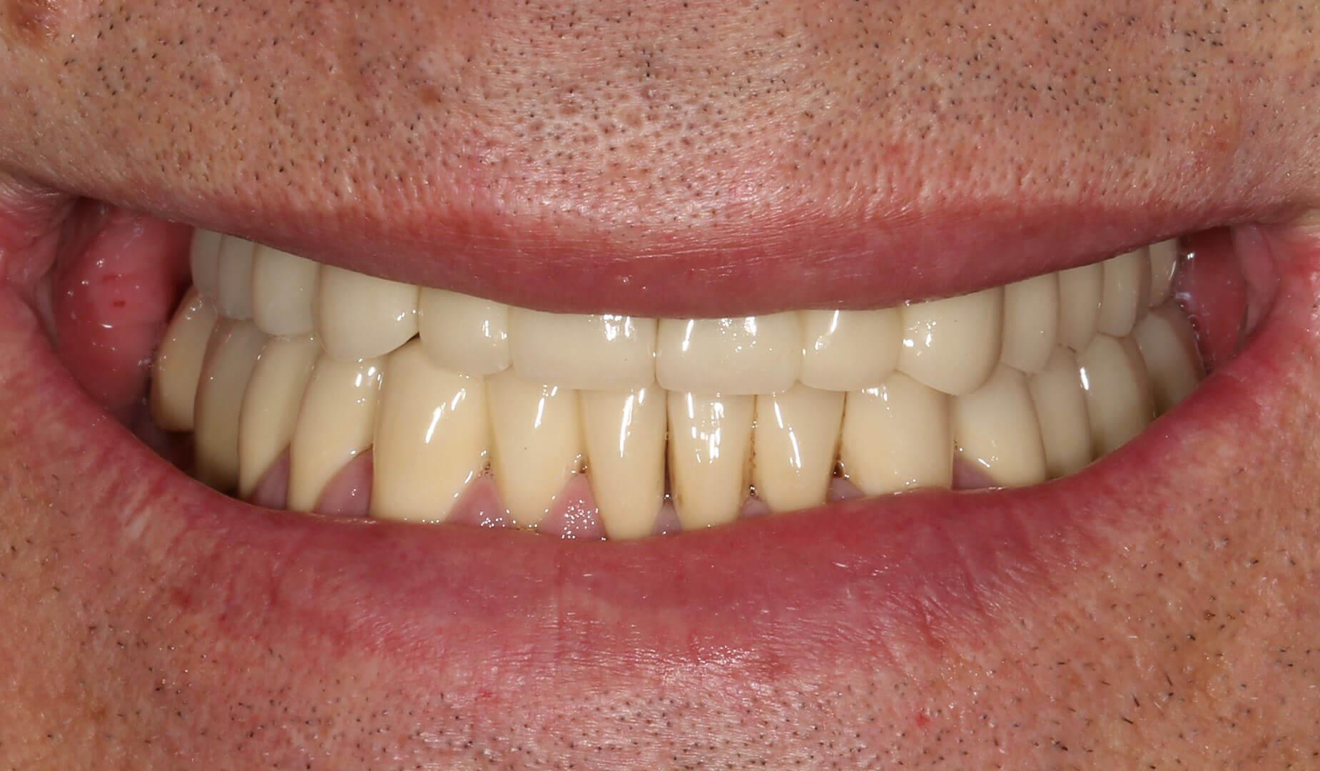 Пациент демонстрирует улыбку