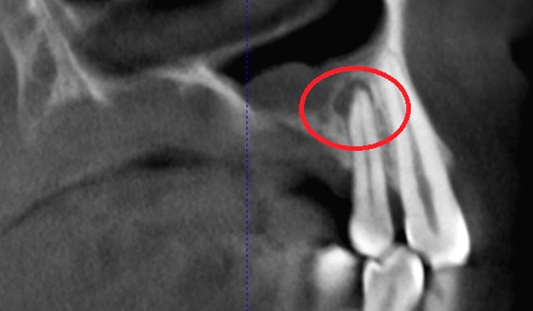 Снимок пролеченного зуба