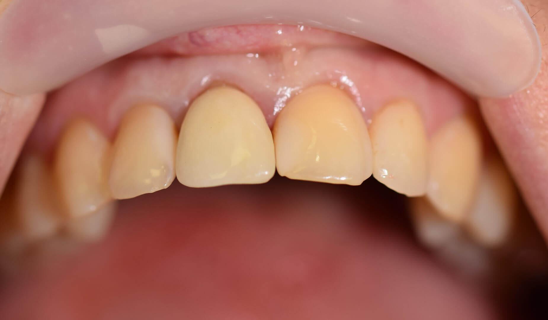 Пациент демонстрирует восстановленный зуб