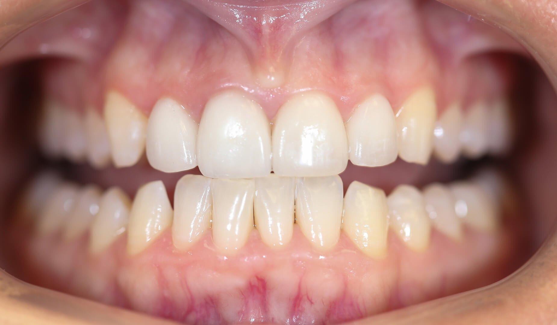 Преображённая улыбка пациента