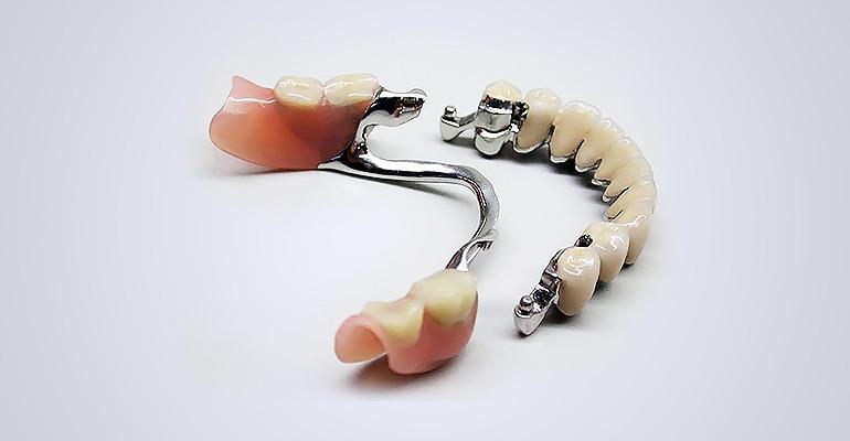 В какой стоматологии лучше протезировать зубы