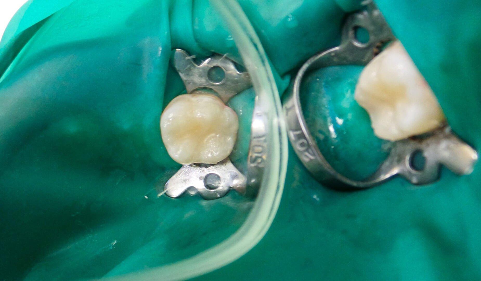 Зубы после устранения кариеса