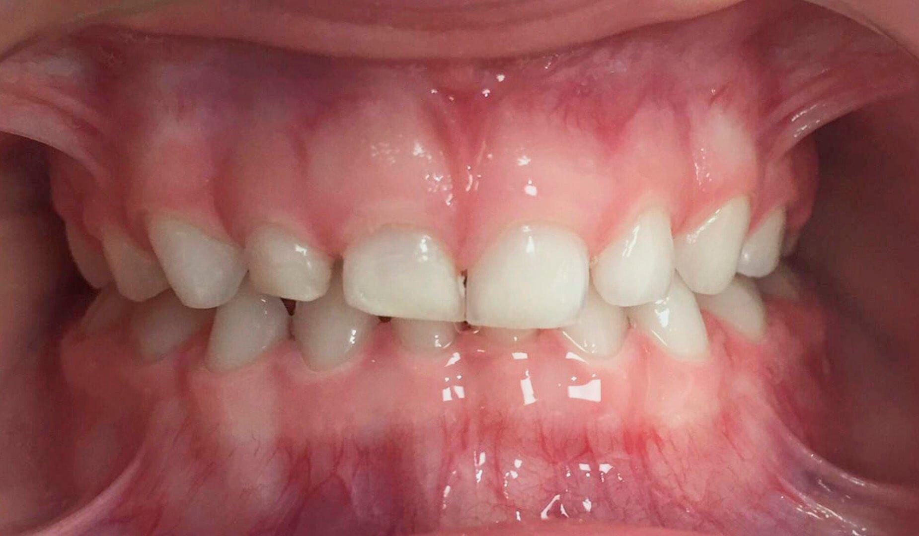 Зубки ребёнка после гигиены