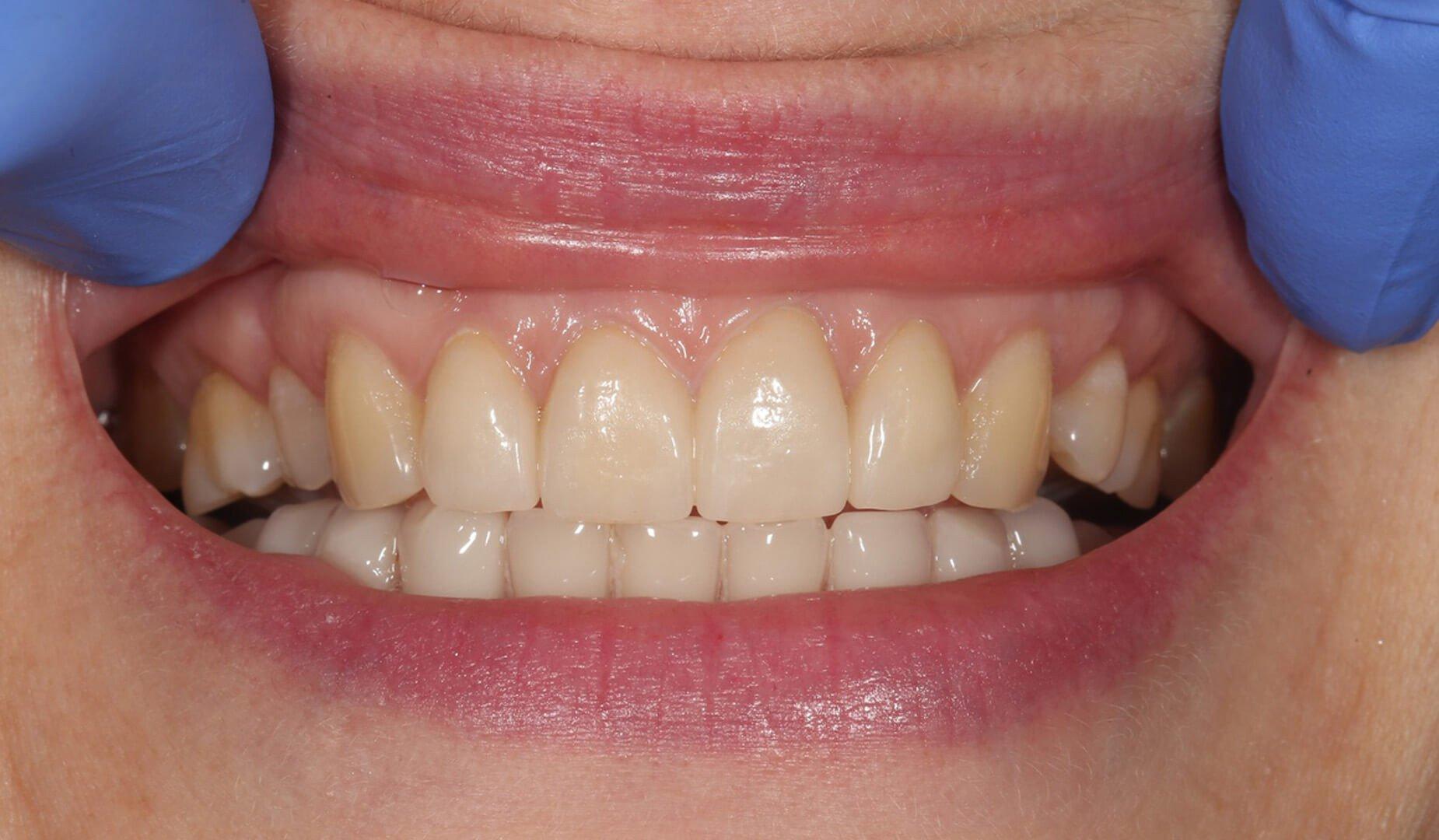 Восстановление зубов пациента