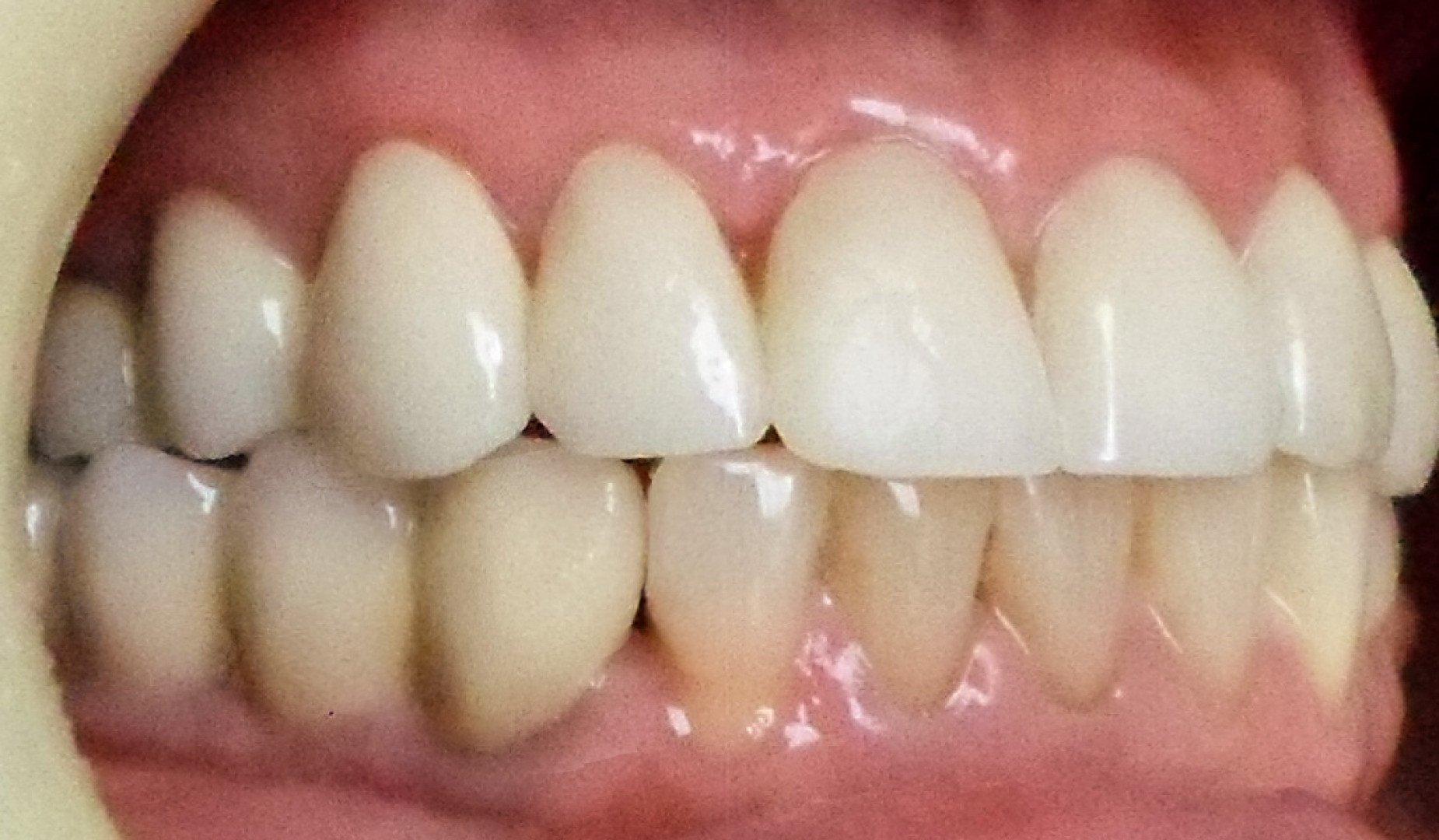 Преобразившаяся улыбка пациента