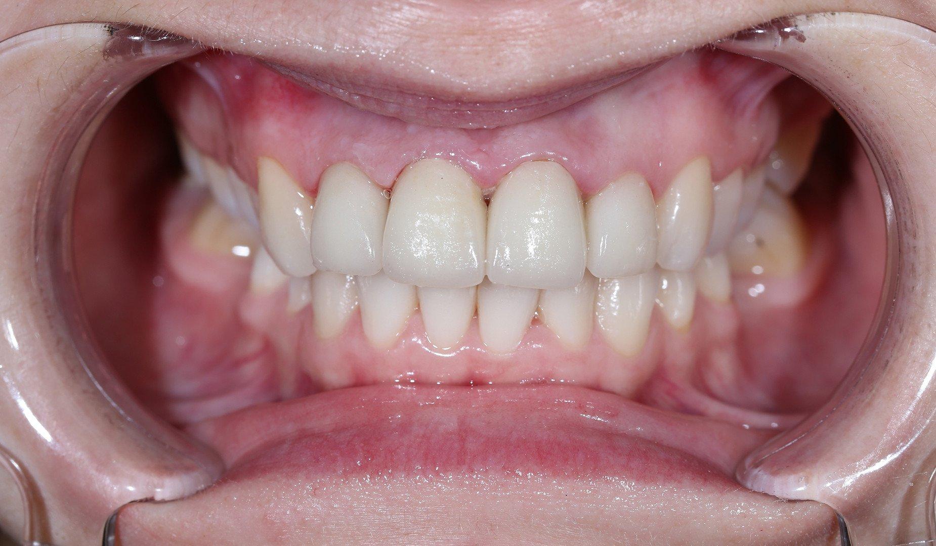 Преображённая улыбка пациентки
