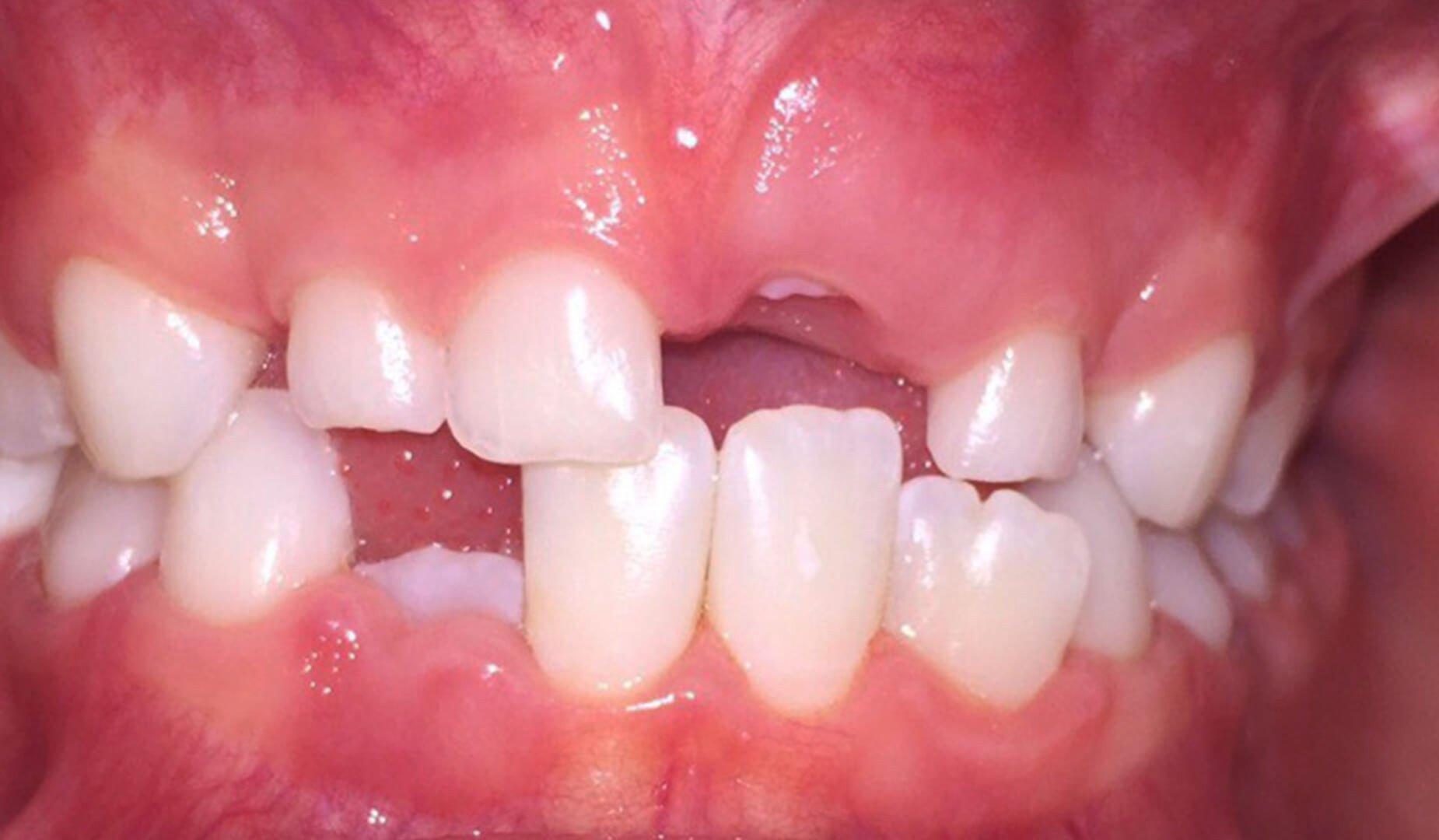 Детские зубки после чистки