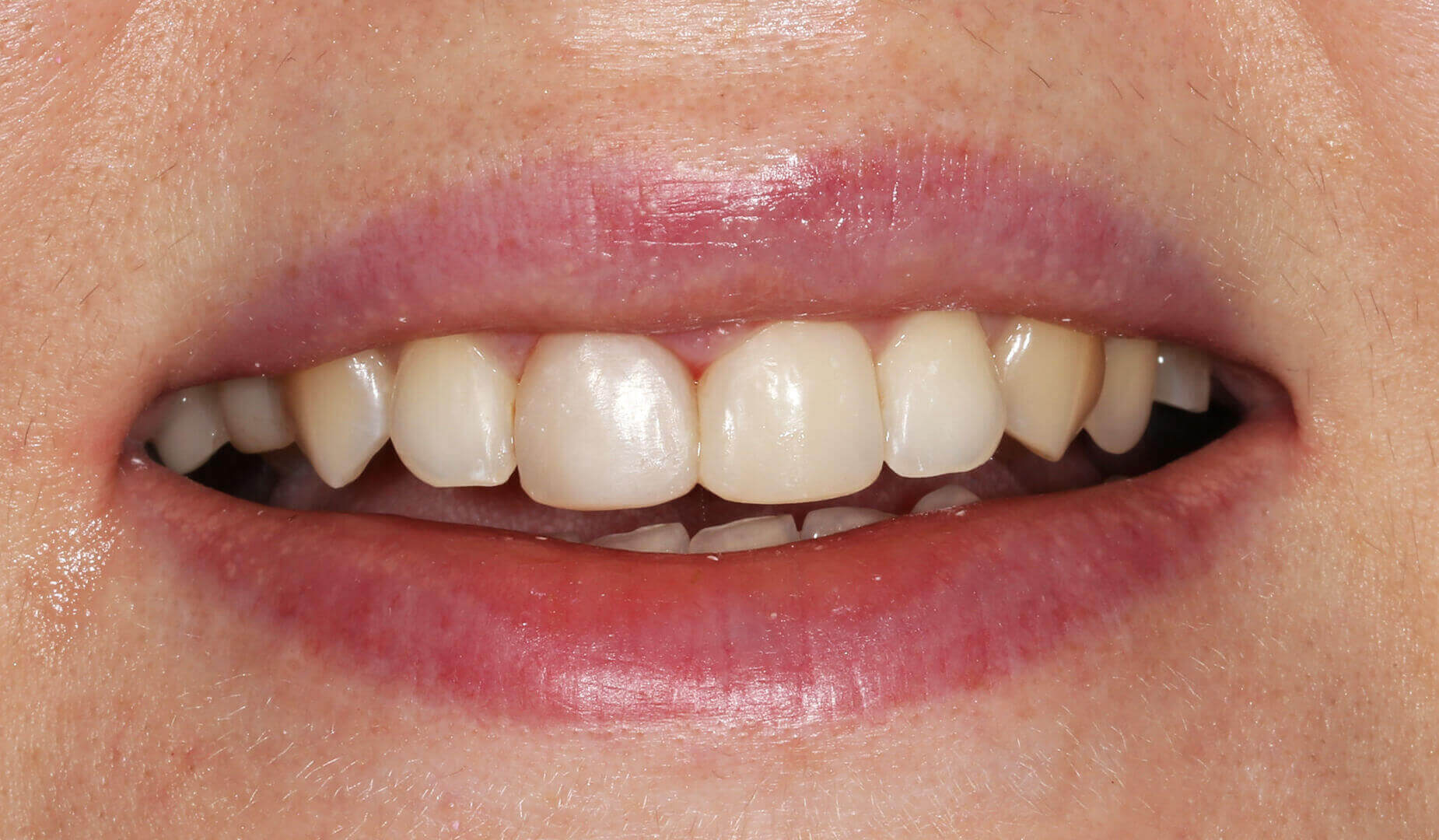 Восстановленная эстетика улыбки