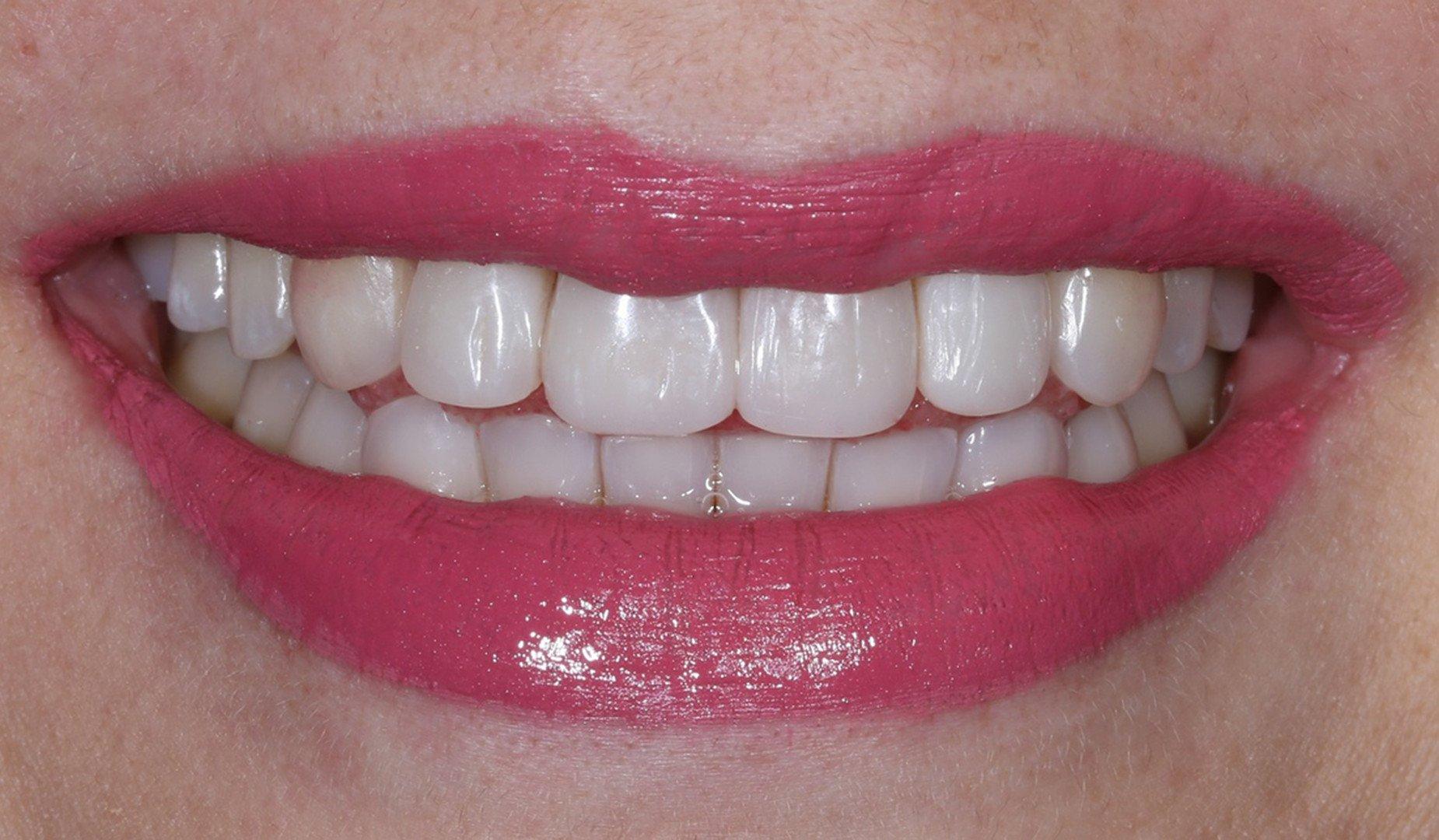 Новая улыбка пациентки