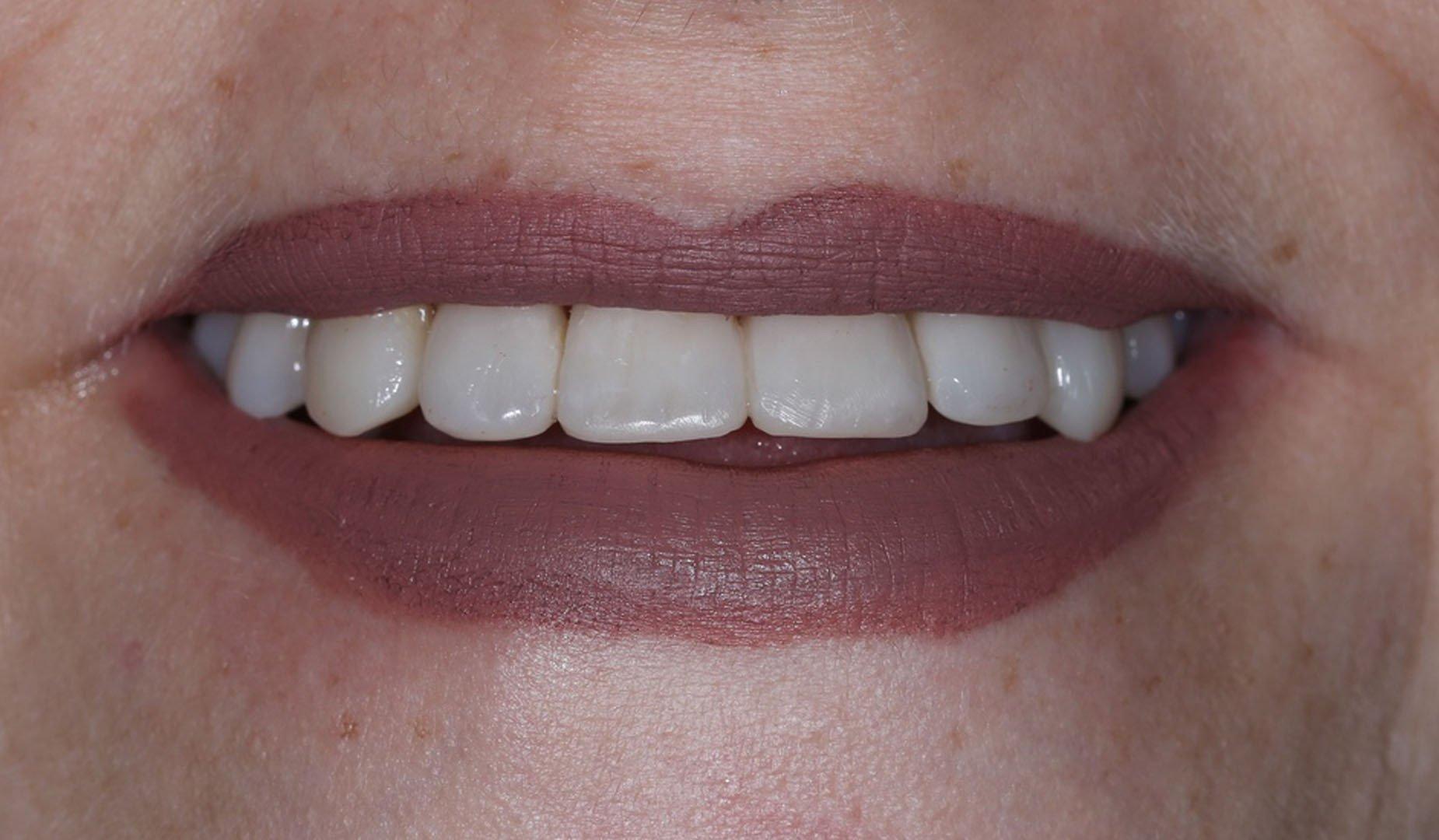 Зубы после лечения