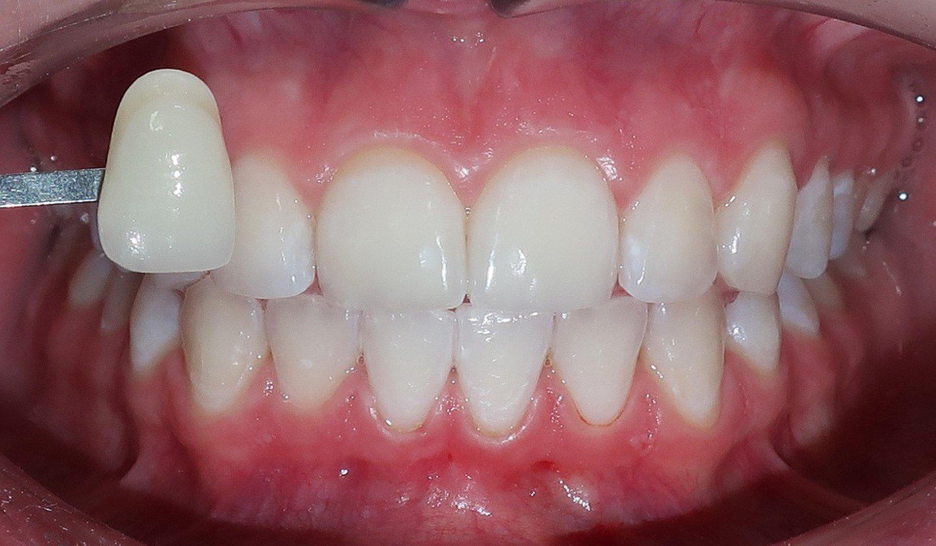 Преображение улыбки пациента
