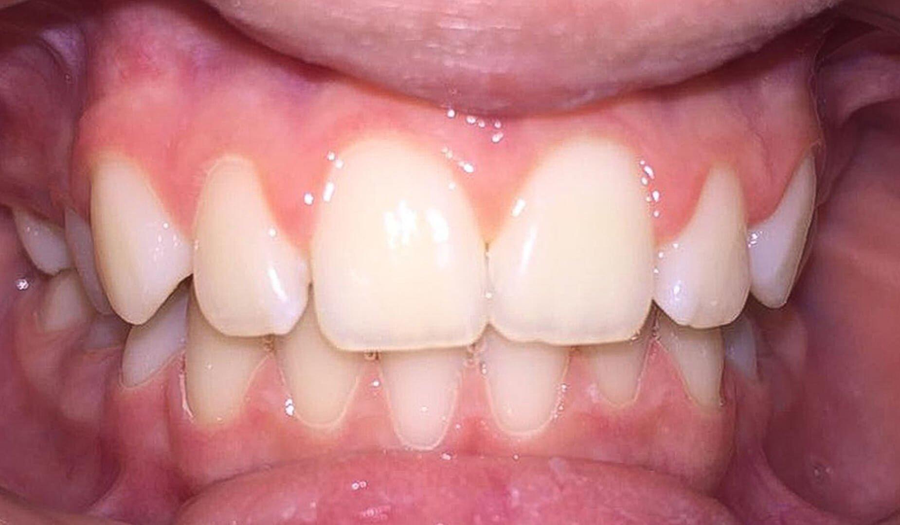 Зубы после чистки