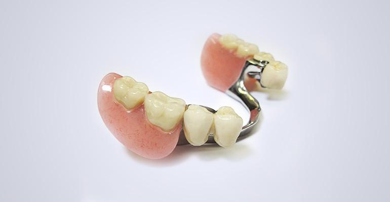 Зубные протезы съемные при частичном отсутствии зубов