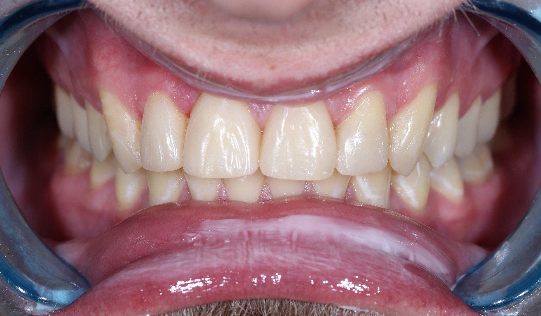 Зубы пациента после проведённого лечения