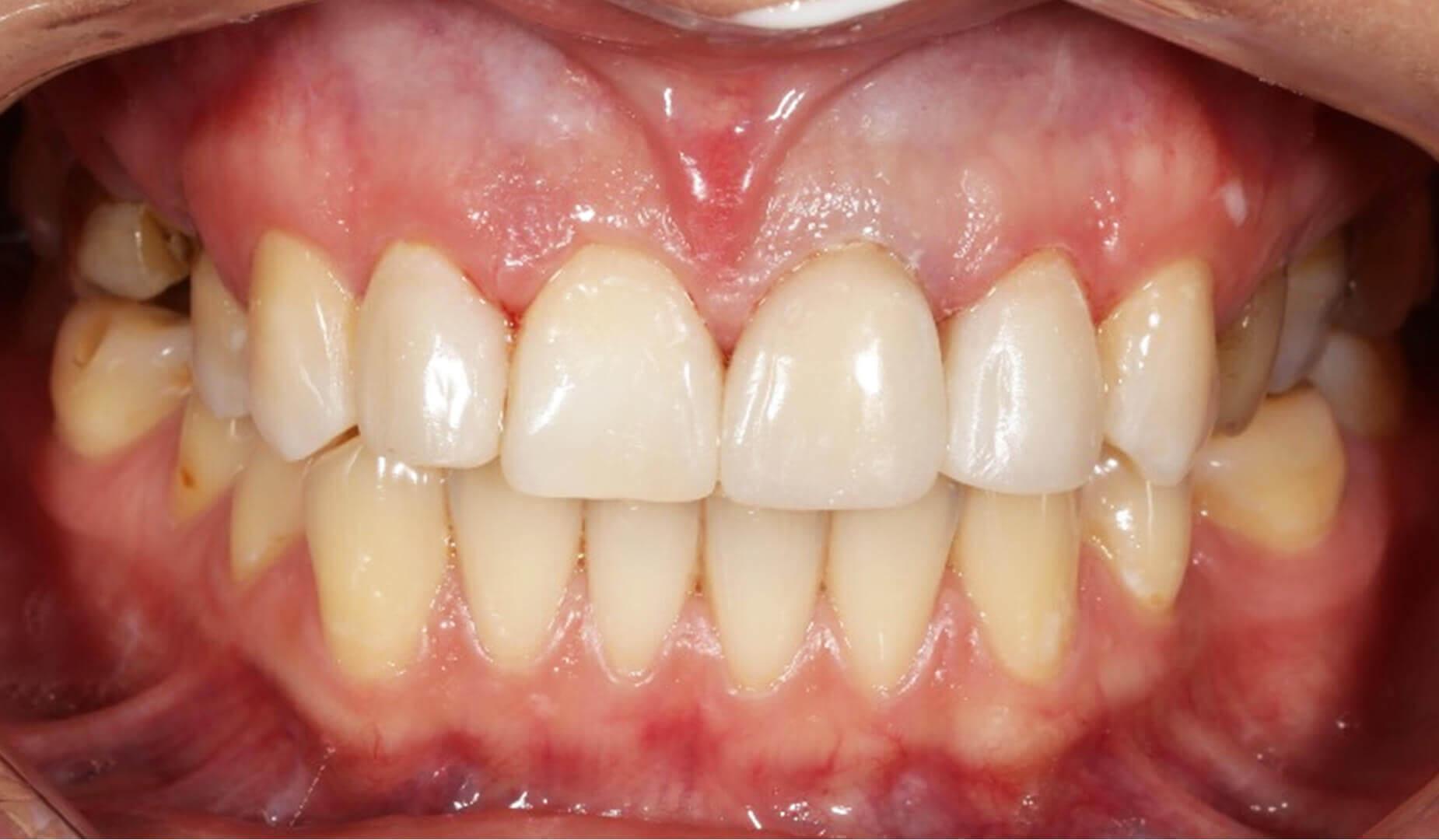 Улыбка после реставрации зубов