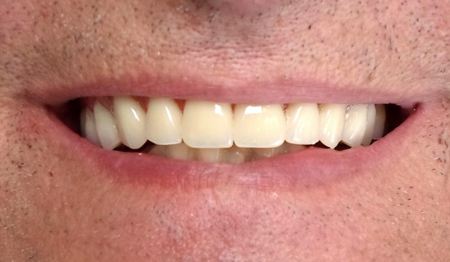 Новая улыбка пациента